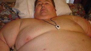 Elhízás fotó