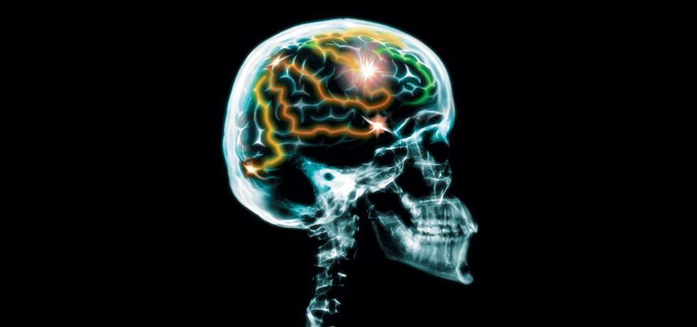 Poigravanje s mozgom