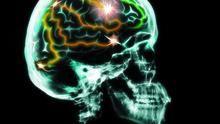 Pon a prueba tu cerebro Serie