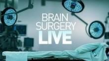 Brain Surgery Live!  show