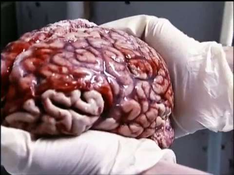 Slicing Einstein's Brain